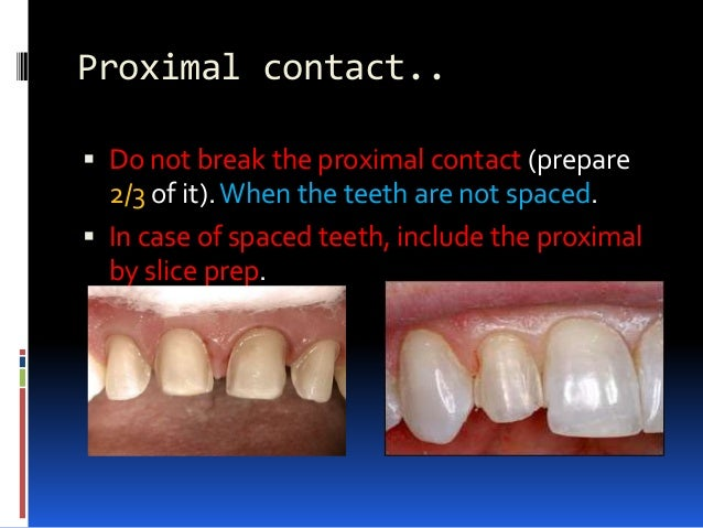 Final impression.  Before taking the final impression of the prepared tooth, fabricate a preliminary provisional restorat...
