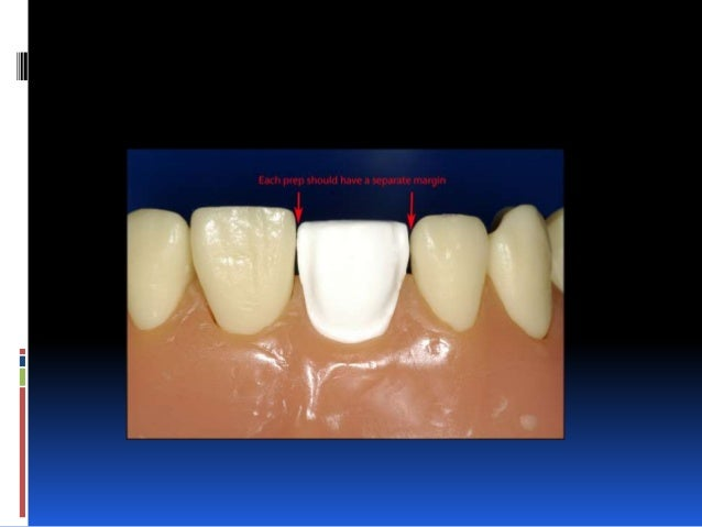 Cementation..  Tay et al. [109] advised to remove the excess of non- polymerised composite cement with a brush moistened ...