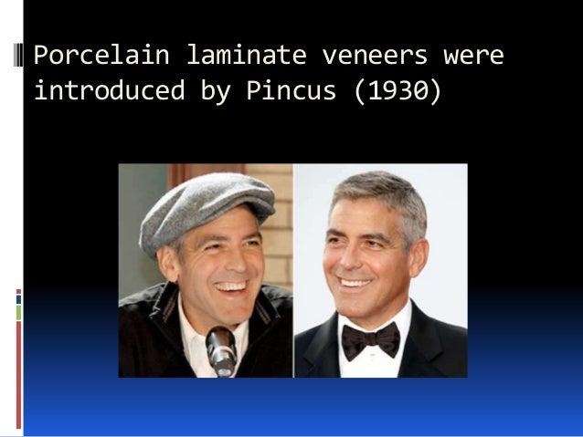 Porcelain laminate veneers were introduced by Pincus (1930)