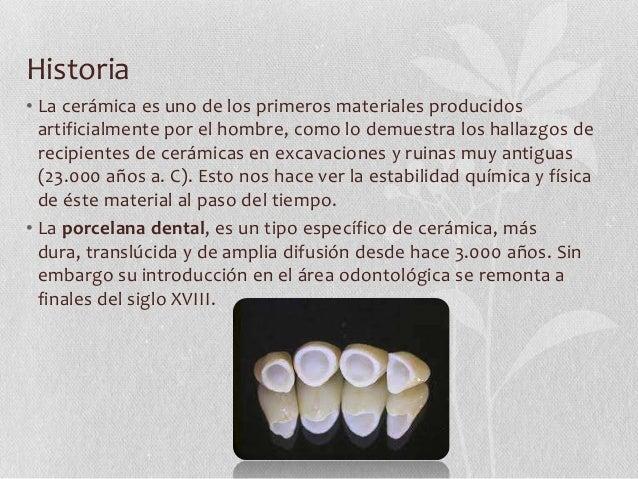 Porcelana dental for Origen de la ceramica