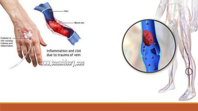 Embolija •embol (lat. embolus) – krvni ugrušak ili bilo koja druga čvrsta, tekuća i plinovita masa, koja se krvotokom pren...