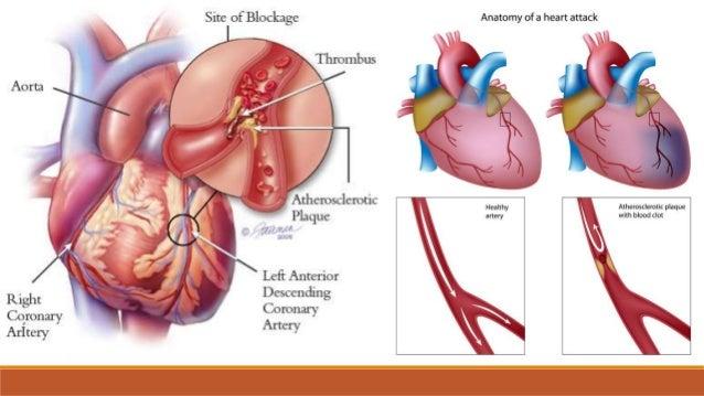 Hipovolemijski šok - patogeneza • nastaje zbog gubitka krvi ili plazme, najčešće uslijed krvarenja, opsežnih opeklina... s...