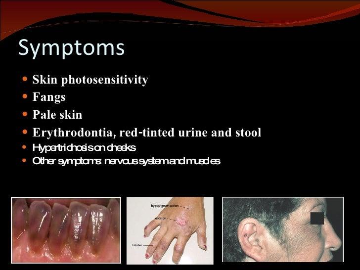 Vampire Disease- Pictures, Symptoms, Causes, Treatment