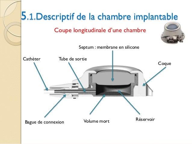 Chambre Implantable Pour Chimiotherapie