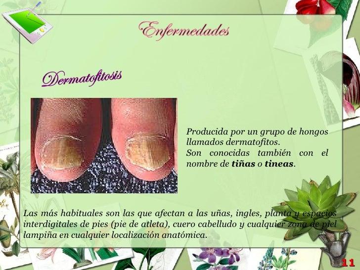 Vistoso Hongos En Las Uñas Verde Foto - Ideas Para Esmaltes - aroson.com
