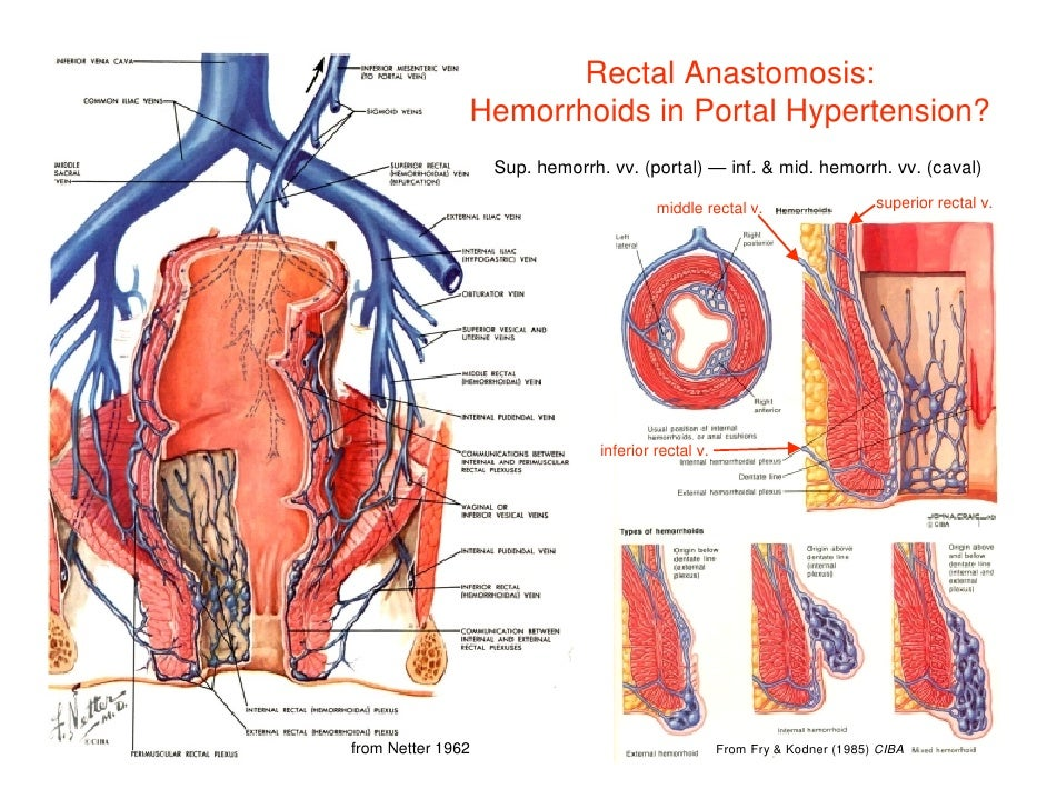 Hemorrhoidal Vein Anatomy Gallery Human Body Anatomy