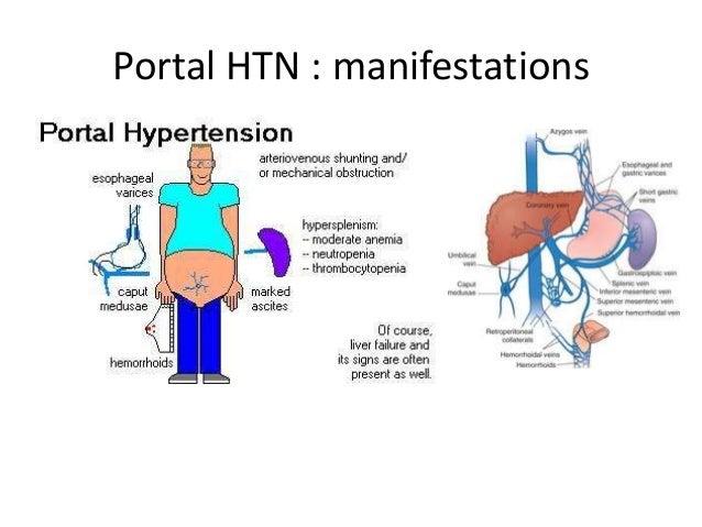 Understanding Portal hypertension