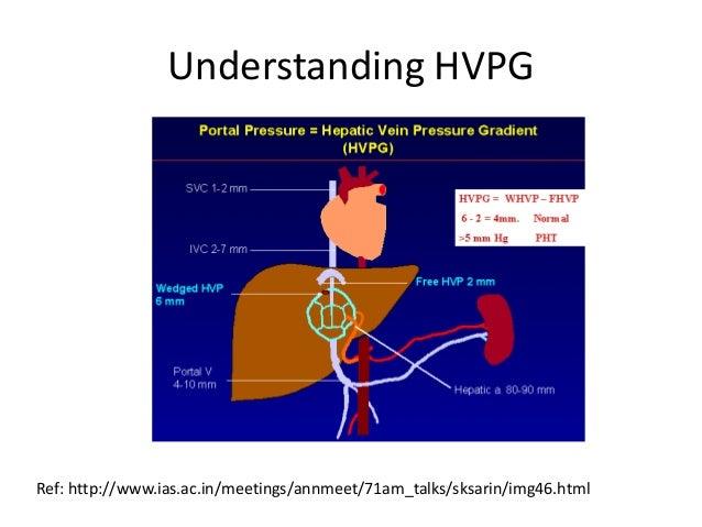 Understanding HVPG  Ref: http://www.ias.ac.in/meetings/annmeet/71am_talks/sksarin/img46.html