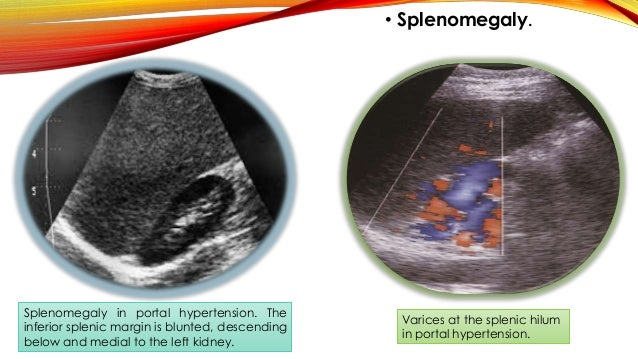 • Dilated portal veins The Normal Portal Vein is < 1.3 cm, > 20% change in caliber with respiration