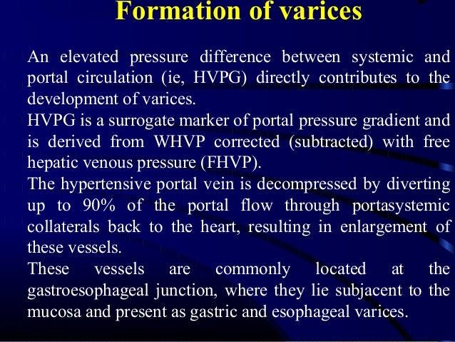 Mechanisms of variceal hemorrhage Increased portal pressure contributes to increased varix size and decreased varix wall t...