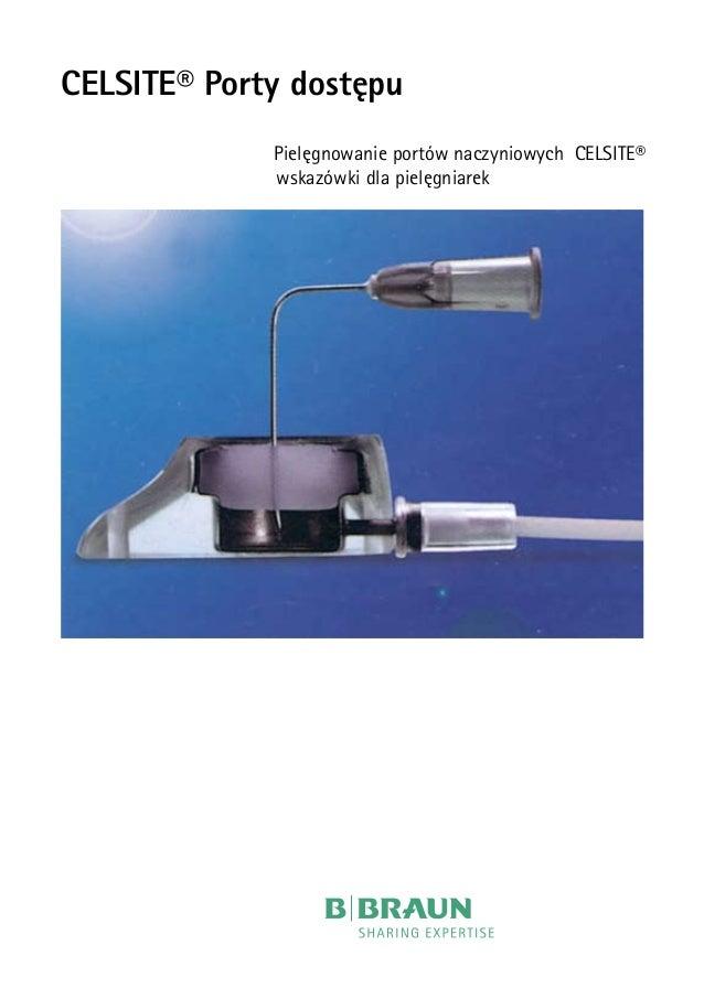 CELSITE® Porty dostępu   Pielęgnowanie portów naczyniowych CELSITE®  wskazówki dla pielęgniarek