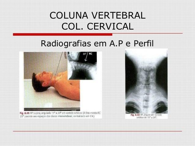 COLUNA VERTEBRAL COL. CERVICAL Radiografias em A.P e Perfil