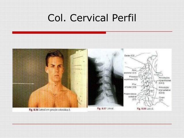 Col. Cervical Perfil