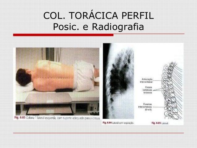 COL. TORÁCICA PERFIL Posic. e Radiografia