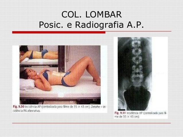 COL. LOMBAR Posic. e Radiografia A.P.