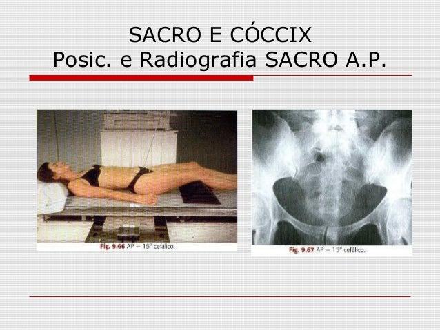 SACRO E CÓCCIX Posic. e Radiografia SACRO A.P.