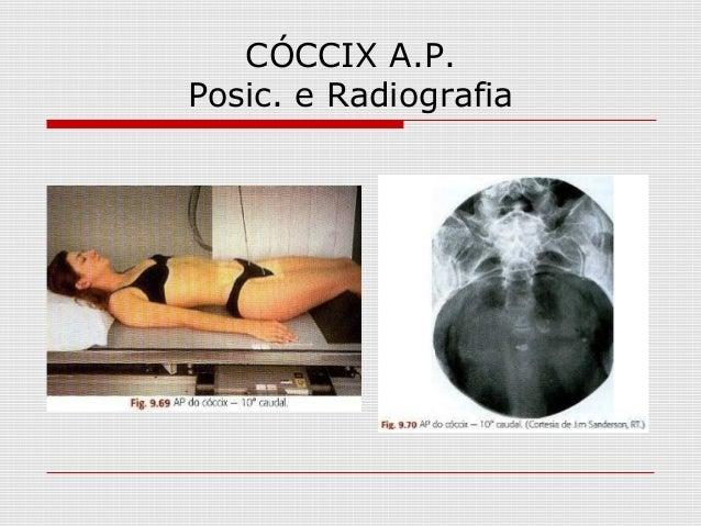 CÓCCIX A.P. Posic. e Radiografia