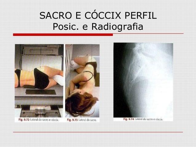 SACRO E CÓCCIX PERFIL Posic. e Radiografia