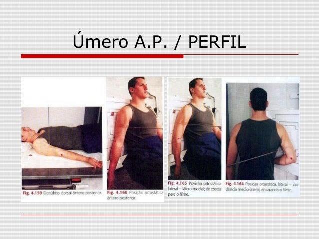 Úmero A.P. / PERFIL