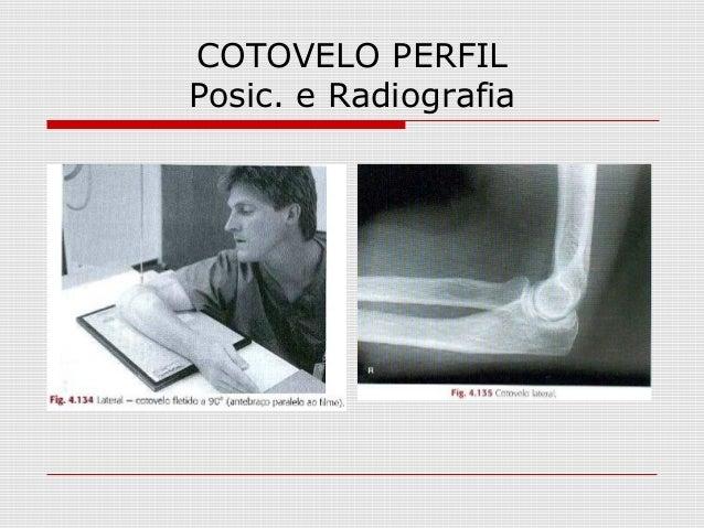 COTOVELO PERFIL Posic. e Radiografia