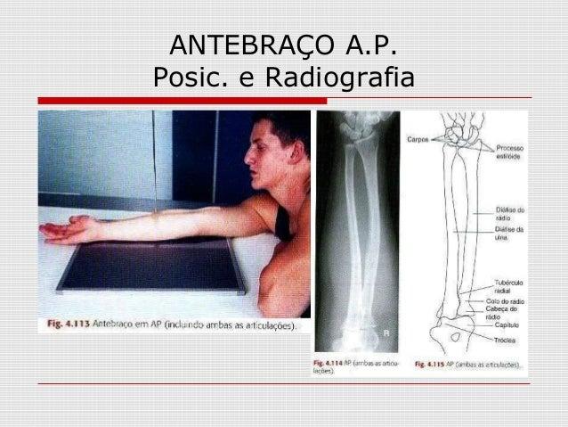 ANTEBRAÇO A.P. Posic. e Radiografia