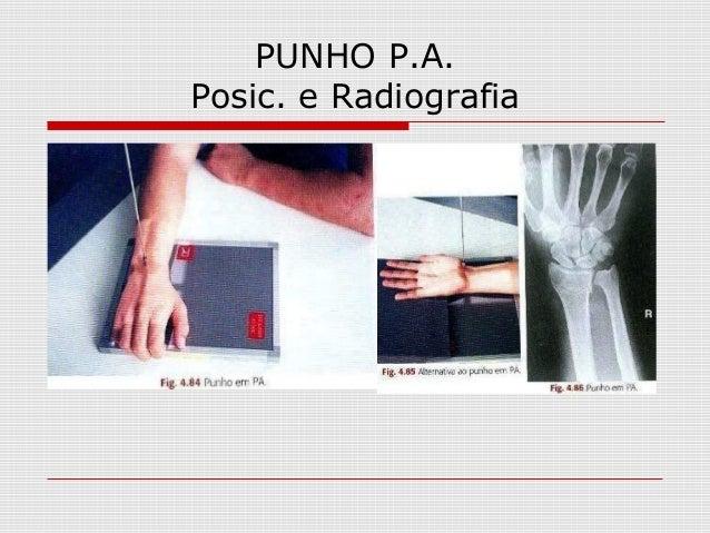 PUNHO P.A. Posic. e Radiografia