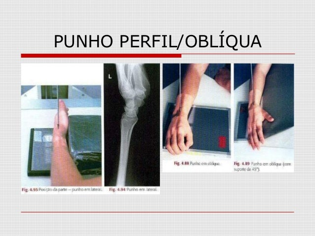 PUNHO PERFIL/OBLÍQUA