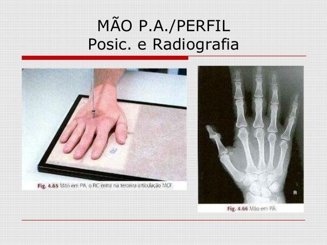 MÃO P.A./PERFIL Posic. e Radiografia