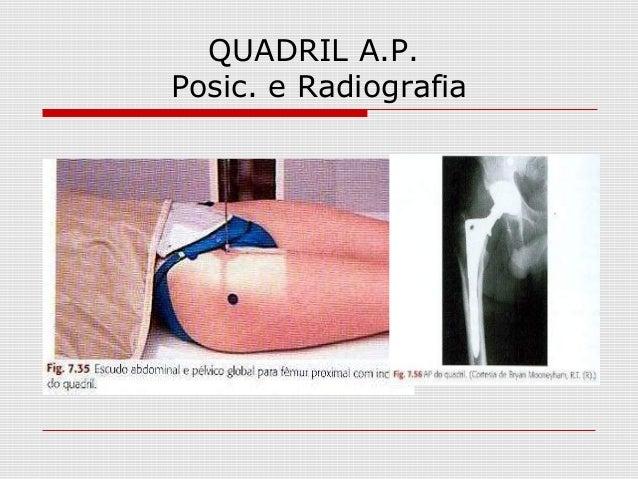 QUADRIL A.P. Posic. e Radiografia