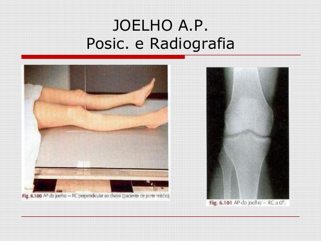 JOELHO A.P. Posic. e Radiografia