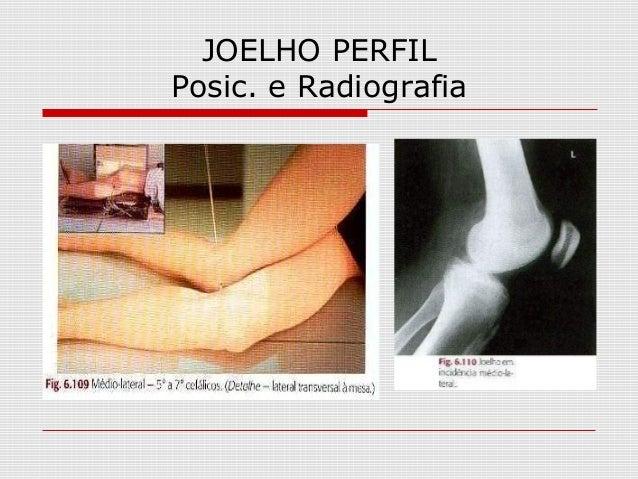 JOELHO PERFIL Posic. e Radiografia