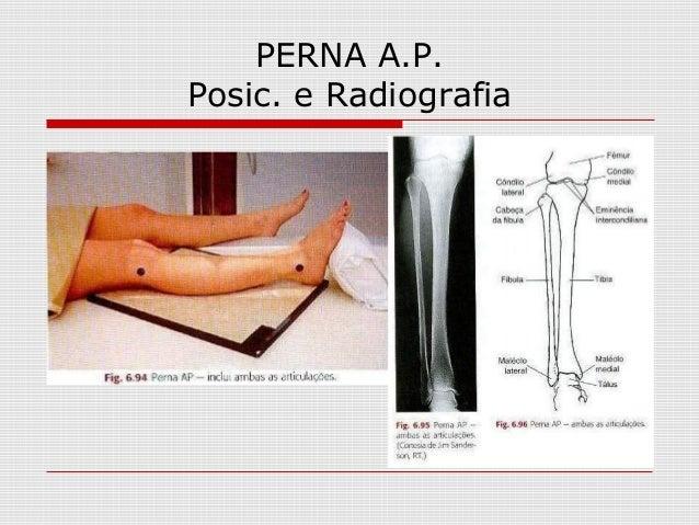 PERNA A.P. Posic. e Radiografia