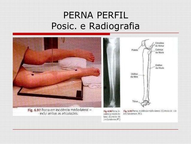 PERNA PERFIL Posic. e Radiografia