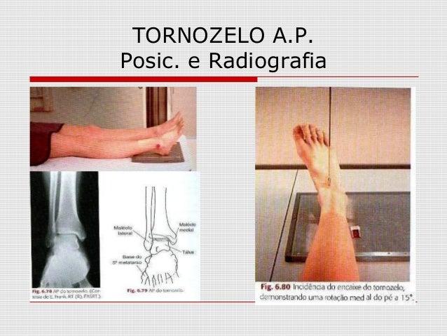 TORNOZELO A.P. Posic. e Radiografia