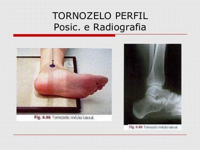 TORNOZELO PERFIL Posic. e Radiografia