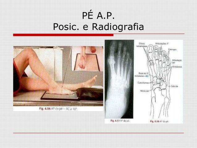 PÉ A.P. Posic. e Radiografia