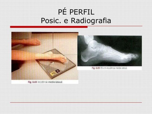 PÉ PERFIL Posic. e Radiografia
