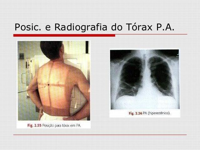 Posic. e Radiografia do Tórax P.A.