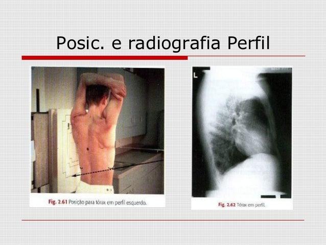 Posic. e radiografia Perfil