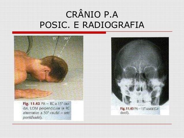 CRÂNIO P.A POSIC. E RADIOGRAFIA