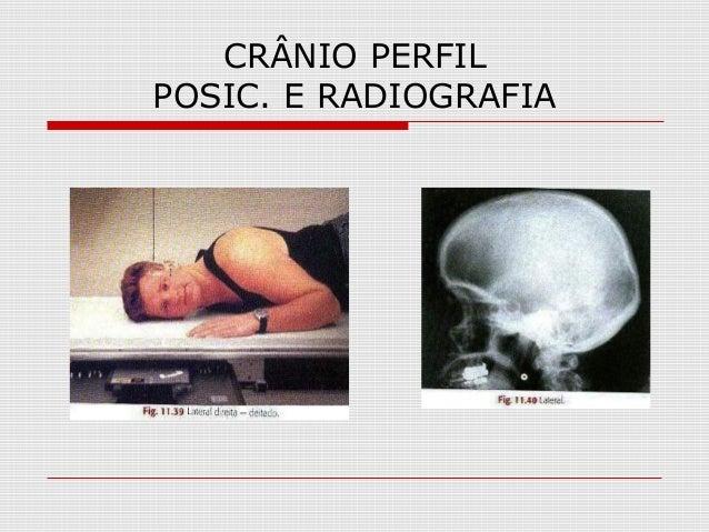 CRÂNIO PERFIL POSIC. E RADIOGRAFIA