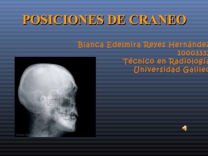 POSICIONES DE CRANEO      Blanca Edelmira Reyes Hernández                              10003332                Técnico en ...