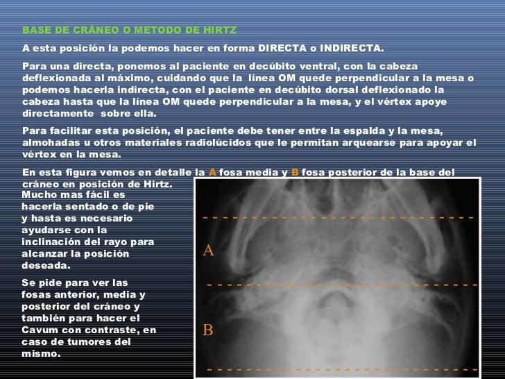 POSTURAS SEMIAXIALESPara explicar con mayor claridad estas 4 posturas, conviene dibujar un cráneo perfil y ver la proyecci...