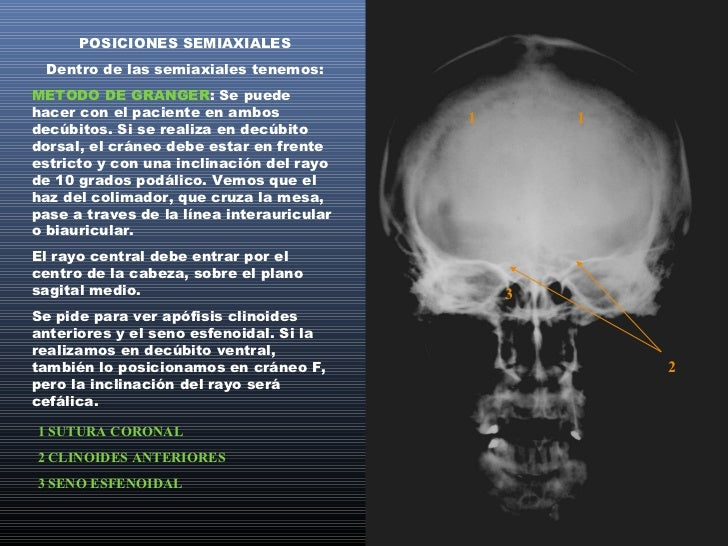 METODO DE CADWELL: También se puede haceren ambos decúbitos. Si lo hacemos en dorsal,colocamos al cráneo en frente estrict...