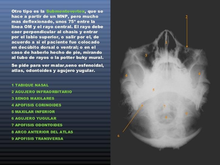POSICIONES ESPECIALESHUESOS PROPIOS:Se hacen en un perfil estricto de cara, con el paciente parado o acostado.Generalmente...