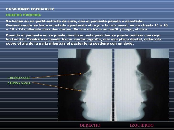 CAVUM:Se llama así al techo de la rinofarínge.Aquí el paciente es colocado en perfil estricto parado,sentado o acostado, e...