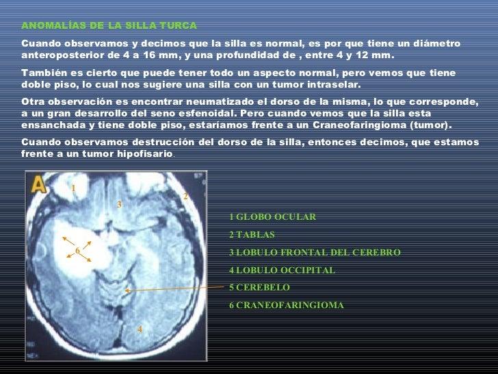 HALLAZGOS RADIOLOGICOSFISIOLÓGICOS Y PATOLÓGICOSLos hallazgos fisiológicos en el cráneo, son aquellos que son compatibles ...