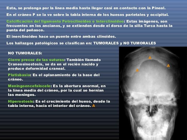 TUMORALESOligodendroglioma: Este tumor se ve como una calcificación en el lóbulo frontal, porencima del ala mayor del esfe...