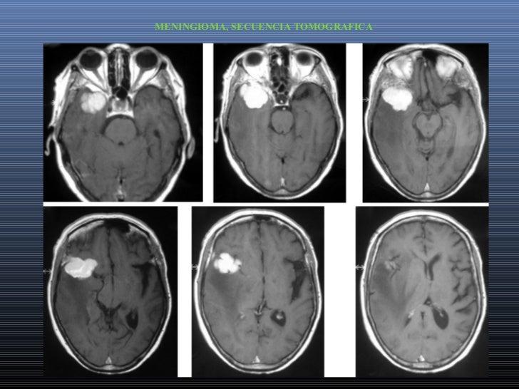 TAUMATISMOS DE CRANEOUn paciente que recibimos traumatizado, no solo tiene golpes y lesiones en elcráneo, además , puede q...