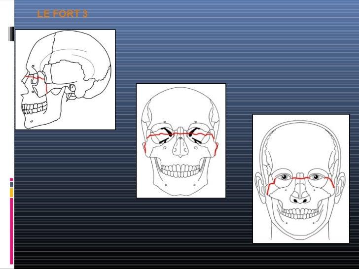 AnálisisrAdiológico de lAs frActurAsdel cráneo y lA      cArA